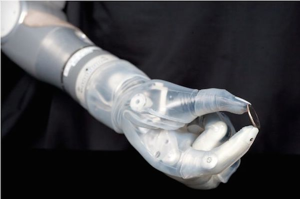 brain operated arm